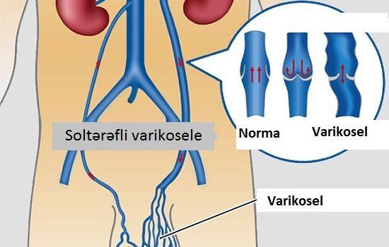 Varikosel haqqinda, varikosel nedir, spermaya necə təsir edir, sonsuzluq