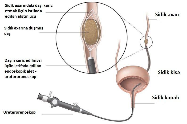 böyrək daşı - lazer - perkutan