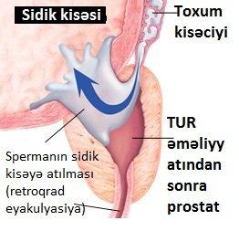 prostat vəzi kistası