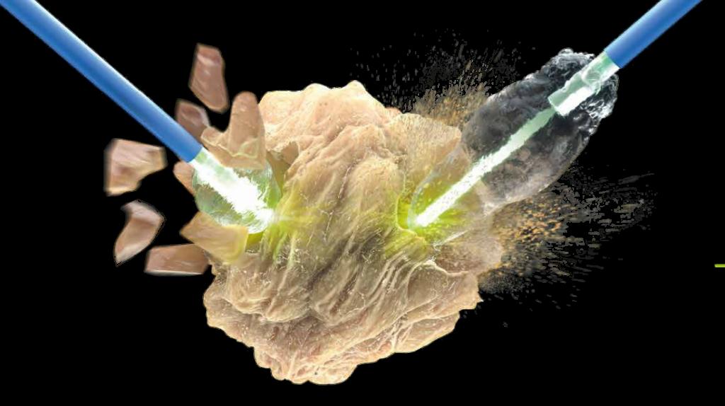 Böyrək daşı lazerlə parçalanması, böyrək daşının lazerlə müalicəsi, boyrek dasi, boyrek sancisi, sidik axarında daşın lazerle mualicesi, litotripsiya.