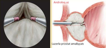 Prostat vəzin lazerlə qapalı əməliyyatı - plazmakinetik TUR, Prostat adenoması əməliyyat