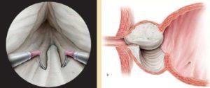Prostat vəzin adenoması