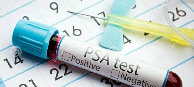 PSA nədir - prostat spesifik antigen