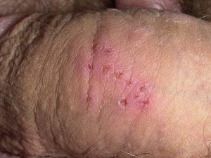 Genital herpes xəstəliyi, cinsi orqanlarda səpkilər, cinsi infeksiya müalicə. Herpes nədir, cinsi orqanda herpes virusu androloq Ziyad Əliyev.