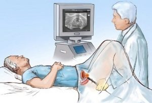 Xroniki prostatit müalicə, Bakıda, androloq, uroloq Ziyad Əliyev. Düzgün diaqnoz effektiv müalicənin qarantıdır. Prostatitin müalicəsi