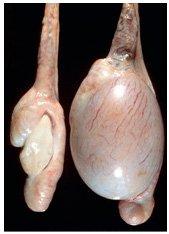 Complications de la varicocèle, complications de la varicocèle, issue de la varicocèle Andrologue Ziyad