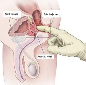prostatin tebii bitkilerle mualicesi