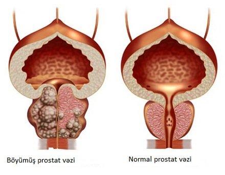 Prostat adenoması və şəkərli diabet zamanı sidik ifrazı-uroloq- androloq