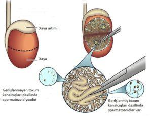 Azoospermiya nədir Spermatozoidlərin tapılmaması- müayinə və müalicə