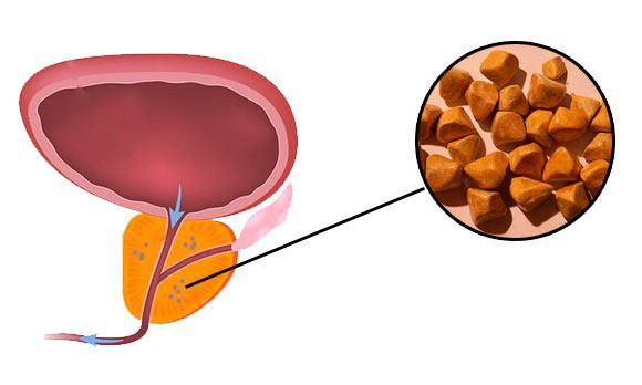 Kalciumát és fibrózist a prosztatában