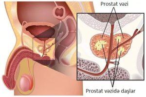 Prostat vəzin kalsinatları və daşları
