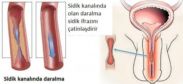 Sidik kanalı daralmasının əlamətləri - sidik kanalında darlıq - striktura