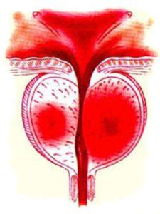 ( Xroniki prostatit zamanı cinsi zəiflik, cinsi zəifliyin səbəbi - prostat vəzi - prostatitin əlamətləri -prostatit zamanı erkən boşalmanın effektiv müalicəsi uroloq - androloq Ziyad Əliyev )