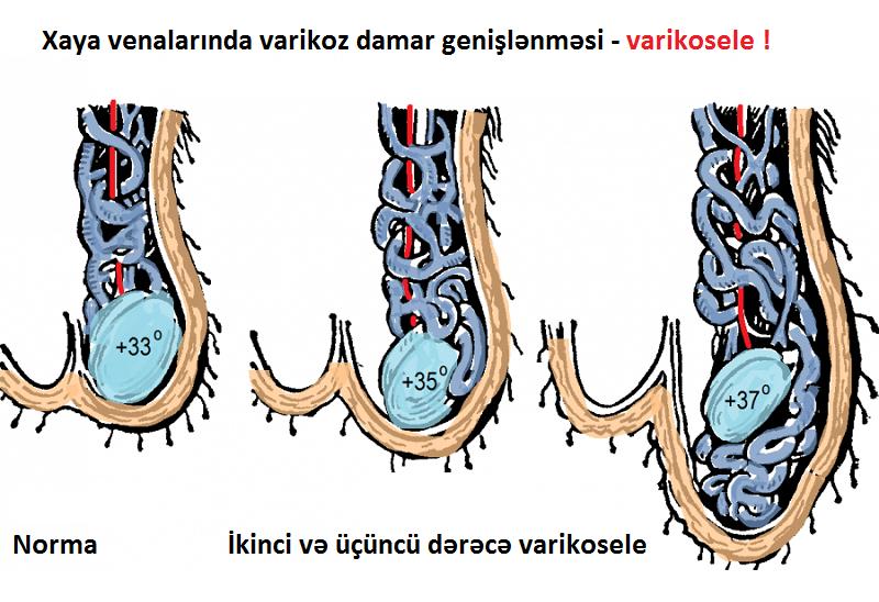 Varikoselin müayinəsi, varikosel müayinə, varikoselin əlamətləri dr Ziyad
