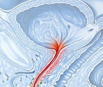 mikoplazma genitalium - mikoplazma hominis.