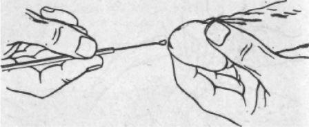 mikoplazma genitalium - mikoplazma hominis