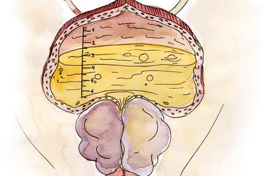 Prostat vəzin böyüməsi, prostat vezin xoşxassəli hiperplaziyası müalicə Bakıda uzman androloq - uroloq Ziyad Əliyev. Prostat adenoması müalicə