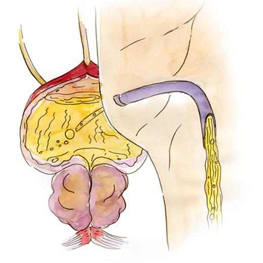 prostat vezin böyüməsi