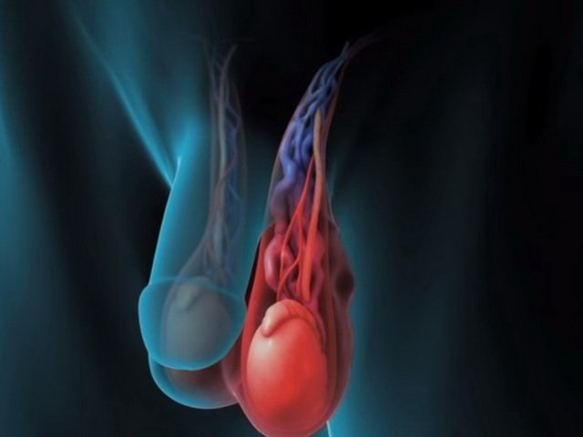 Sıx alt paltarın spermaya təsiri varikosel effekti yaradır. Androloq Ziyad